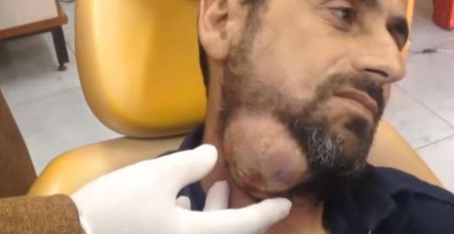 Suriyeli adamın boynundan çıkanlar şaşırttı!